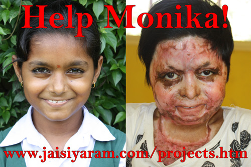 Help Monika – a 12-year-old with severe Burns! – 15 Dec 14