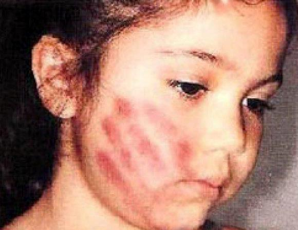 Domestic Violence in India - Senseless and cruel Beating of Women and Children - 7 Nov 11